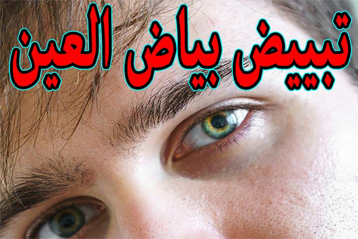 كيفية تصفية بياض العين - تبييض بياض العين 1