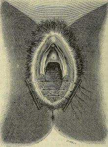 علاج الحكة في المهبل