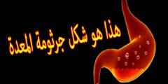 شكل جرثومة المعدة و 6 أسباب للجرثومة الحلزونية