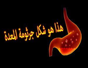 اعراض جرثومة المعده والقولون